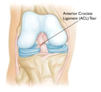 Knee Injury Claims