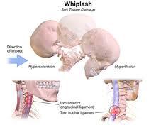 Whiplash Accidents